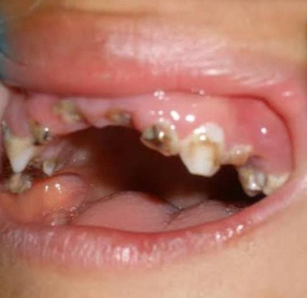 Bé 3 tuổi nghiện kẹo nhưng lười đánh răng, bố mẹ sốc khi con bị vi khuẩn ăn lên mắt-2