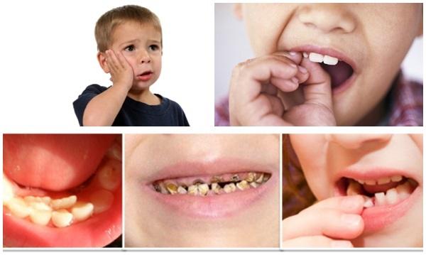 Bé 3 tuổi nghiện kẹo nhưng lười đánh răng, bố mẹ sốc khi con bị vi khuẩn ăn lên mắt-4
