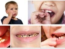 Bé 3 tuổi nghiện kẹo nhưng lười đánh răng, bố mẹ sốc khi con bị vi khuẩn ăn lên mắt