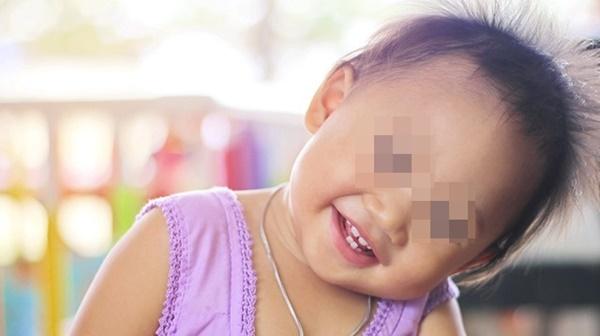 Thấy con hay tự giật tóc của mình, mẹ cần xử lý ngay vì rất có thể đó là dấu hiệu của một bệnh nghiêm trọng-2