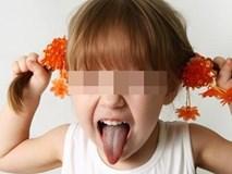 Thấy con hay tự giật tóc của mình, mẹ cần xử lý ngay vì rất có thể đó là dấu hiệu của một bệnh nghiêm trọng