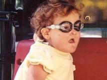 Bé gái không biết đau, tự cắn lưỡi, chọc mù mắt vì căn bệnh lạ