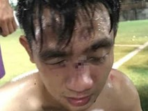 Hà Nội: Tranh chấp khi đá bóng, 15 cầu thủ lao vào đánh đối phương nhập viện