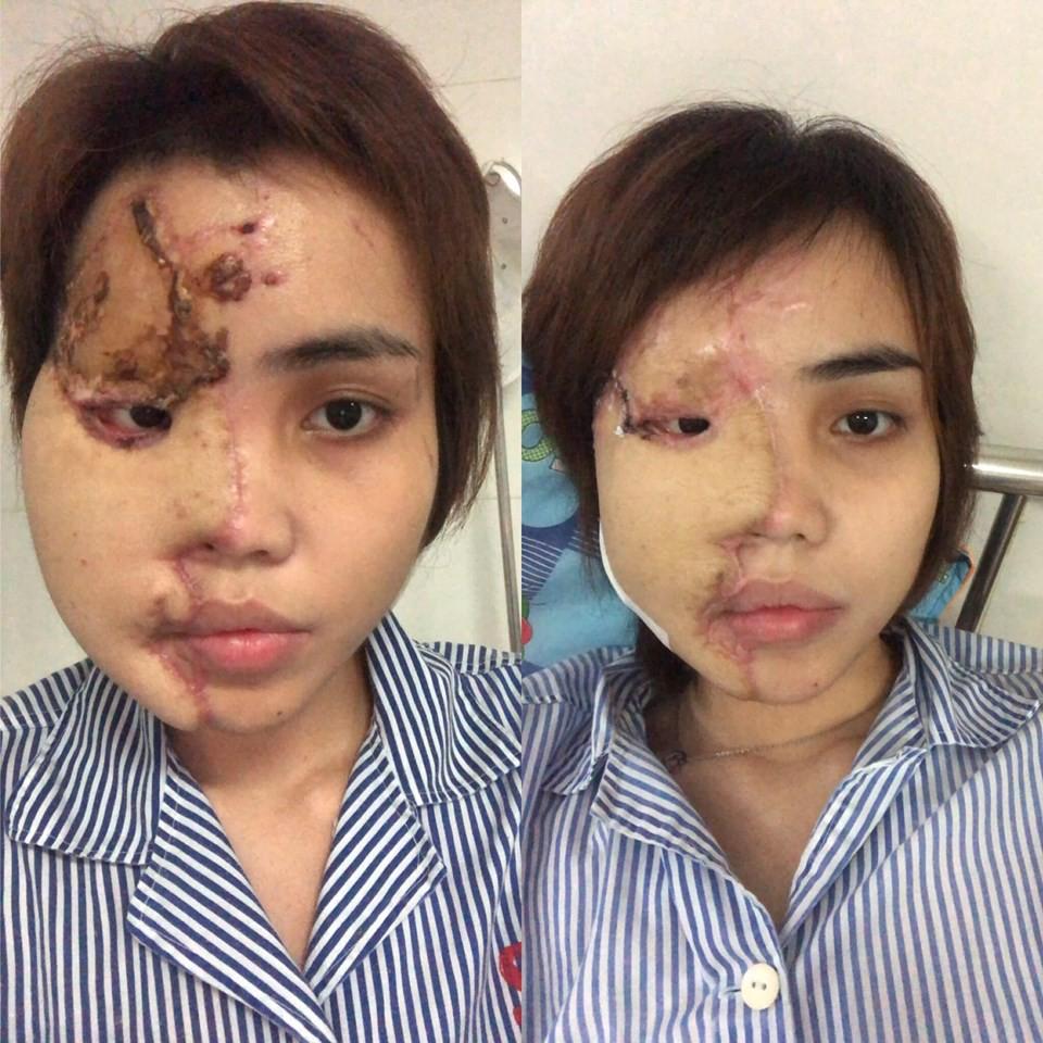Cựu thiếu úy công an tạt axit vợ sắp cưới vì cuồng ghen ở Đà Nẵng lãnh án 6 năm tù-2