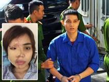 Cựu thiếu úy công an tạt axit vợ sắp cưới vì cuồng ghen ở Đà Nẵng lãnh án 6 năm tù