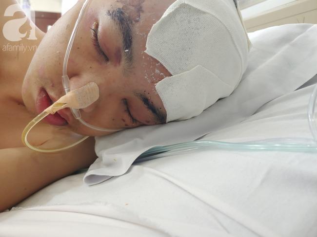 Con trai bị tai nạn dập não, bố chỉ nói câu đang bận rồi cúp máy, người mẹ nghèo bật khóc giữa bệnh viện-3