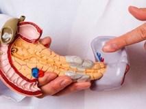 5 tín hiệu cầu cứu của cơ thể khi bị ung thư tuyến tuỵ