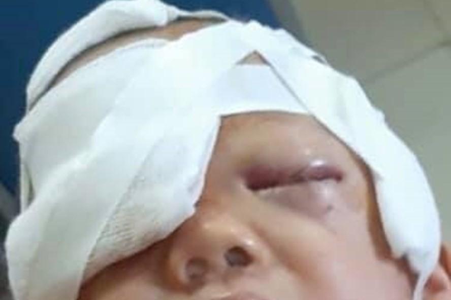 Chó nhà tấn công bé 20 tháng tuổi rách vùng đầu mặt-1
