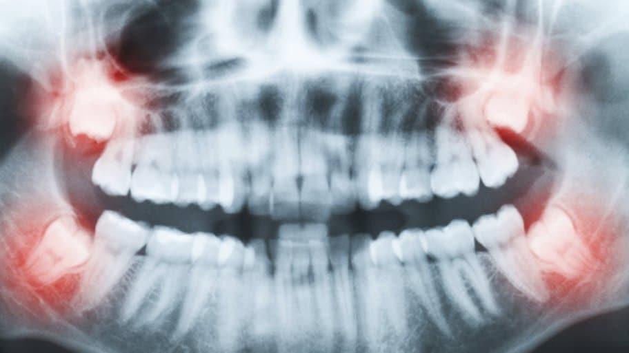 Vừa chiến thắng bệnh ung thư, người phụ nữ lại mất mạng vì... nhổ răng khôn-2