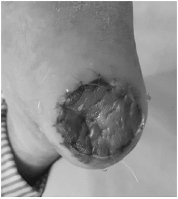 Chủ quan với chấm đen ở chân, bệnh nhân ngỡ ngàng khi biết mình mắc ung thư ác tính nhất-2