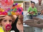 Bà mẹ lên tiếng cảnh báo sau khi phải cưa món đồ chơi trẻ em để giải cứu ngón tay cho con gái-5
