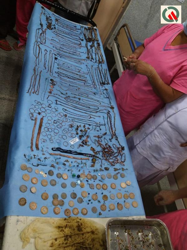 """Các bác sĩ giật mình"""" khi phát hiện gần 1,6kg trang sức cùng 1,5 tỷ đồng nằm gọn trong dạ dày người phụ nữ bởi một hội chứng bí ẩn-4"""