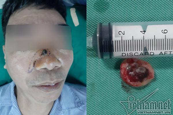 Tẩy nốt ruồi lại mọc, người đàn ông phải khoét mũi vì ung thư-1