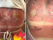 Cô gái 16 tuổi bị bỏng nắng nghiêm trọng, khiến vùng lưng nổi đầy mụn nước