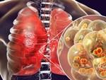 Người phụ nữ mắc ung thư phổi 10 năm vẫn sống khỏe vì làm 3 việc để tự cứu mình-4