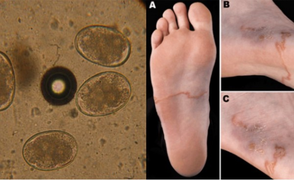 Nam thanh niên đi chân trần trên đất, về nhà tiêu chảy ra máu khoảng 30 lần/ngày-3