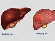 Ung thư gan VN xếp thứ 4 thế giới, những cách chữa mới nhất bệnh nhân cần biết