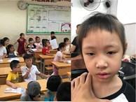 Bố trẻ than trời vì mái tóc nham nhở của con gái trong ngày đầu tiên đi học, dân mạng xem xong chỉ biết cười lăn lóc