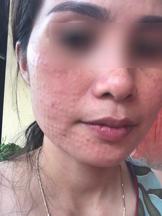 Tiêm collagen làm đẹp da, làn da người phụ nữ nổi sần khắp mặt phải cầu cứu bác sĩ-1