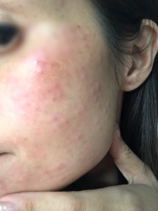 Tiêm collagen làm đẹp da, làn da người phụ nữ nổi sần khắp mặt phải cầu cứu bác sĩ-2