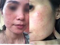 Tiêm collagen làm đẹp da, làn da người phụ nữ nổi sần khắp mặt phải cầu cứu bác sĩ