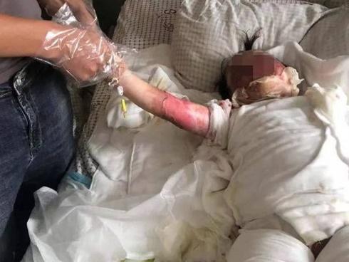 Bé 2 tuổi ngã vào chảo dầu sôi, hành động tưởng cứu nguy của cha mẹ hóa ra hại con