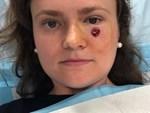 Nằm giường tắm nắng, một phụ nữ phải cắt cụt tai do ung thư da-4