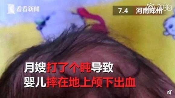 Y tá ngủ gật trong lúc bế, bé trai sơ sinh chấn thương nặng nề vì đập đầu xuống đất-2