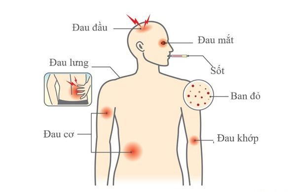 Triệu chứng dễ nhầm sốt xuất huyết và sốt thường, để lâu nguy hiểm tính mạng-2