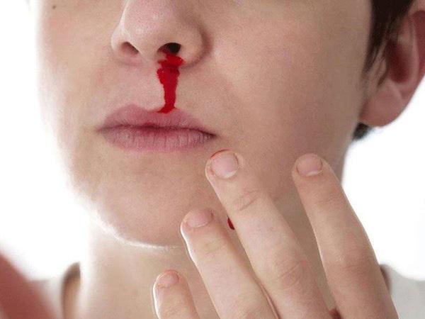 Triệu chứng dễ nhầm sốt xuất huyết và sốt thường, để lâu nguy hiểm tính mạng-3