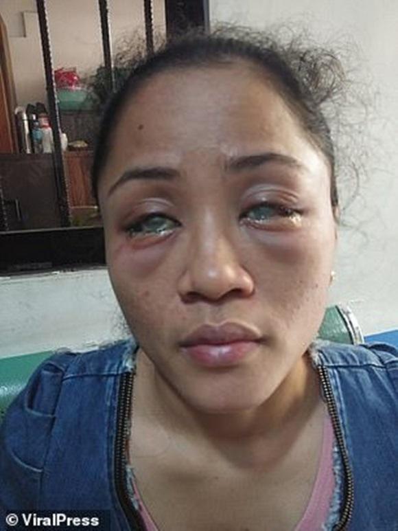 Phát hiện bạn trai có người tình đồng tính bên ngoài, cô gái chưa hết đau lòng còn bị đánh ghen ngược, đối mặt nguy cơ mù cả hai mắt-1