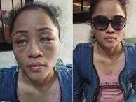 Phát hiện bạn trai có người tình đồng tính bên ngoài, cô gái chưa hết đau lòng còn bị đánh ghen ngược, đối mặt nguy cơ mù cả hai mắt