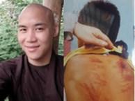 Sau vụ 'thầy tu' bị tố dâm ô, đánh dã man bé trai 11 tuổi, phụ huynh nói gì về các khóa học mùa hè?