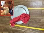 Sức khỏe 3 trẻ mầm non bị bỏng do cô giáo đốt cồn dạy học: Thông tin mới nhất-2