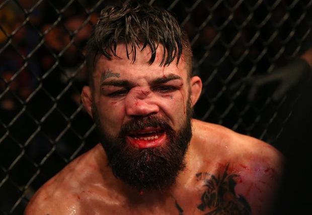 Mũi của võ sĩ điển trai biến dạng đến không thể tin nổi sau khi phải nhận một trong những chấn thương kinh hoàng-2