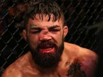 Mũi của võ sĩ điển trai biến dạng đến không thể tin nổi sau khi phải nhận một trong những chấn thương kinh hoàng