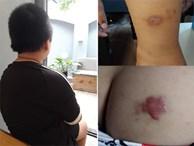 Nghi án bố cùng dì ghẻ bạo hành con trai dã man suốt nhiều năm ở Phú Thọ: Đốt túi bóng nhỏ vào mông, bắt nhặt cơm dưới đất lên ăn