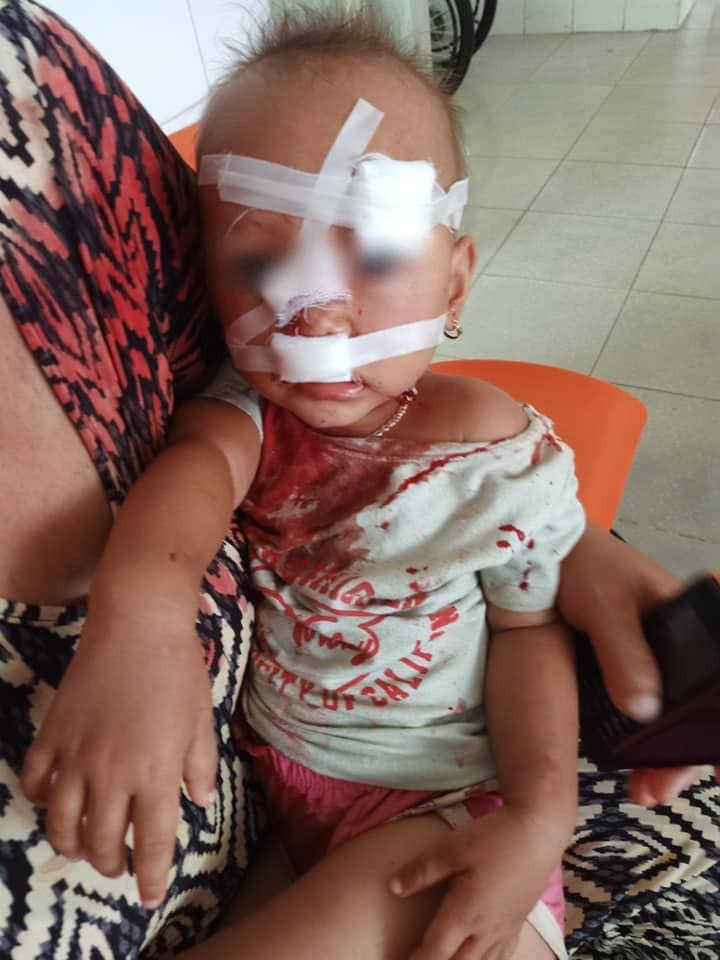 NÓNG: Bé gái 2 tuổi mặt mũi đầy máu được mẹ bế đi cấp cứu, nghi do bố ruột bạo hành-3