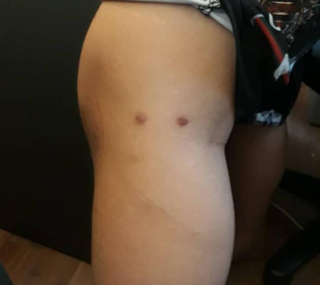 Bị vợ cũ tố cùng vợ mới bạo hành con trai 12 tuổi dã man, đốt cả túi nylon để nhỏ vào mông bé, người bố nói gì?-1