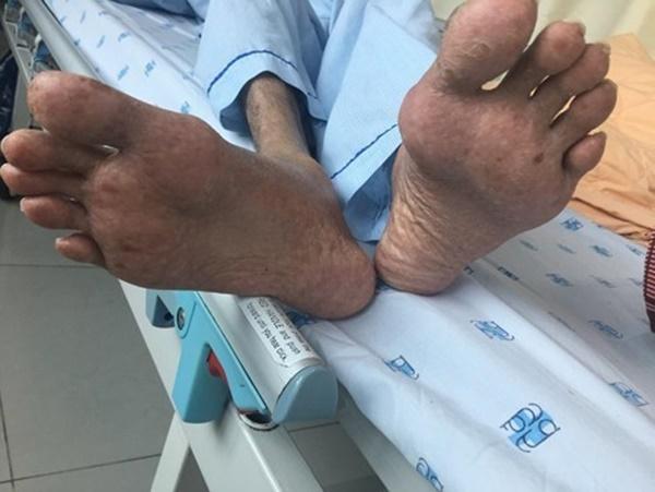 Hy hữu: Người đàn ông Việt suy kiệt cơ thể, suýt tử vong vì thói quen kỳ lạ-1