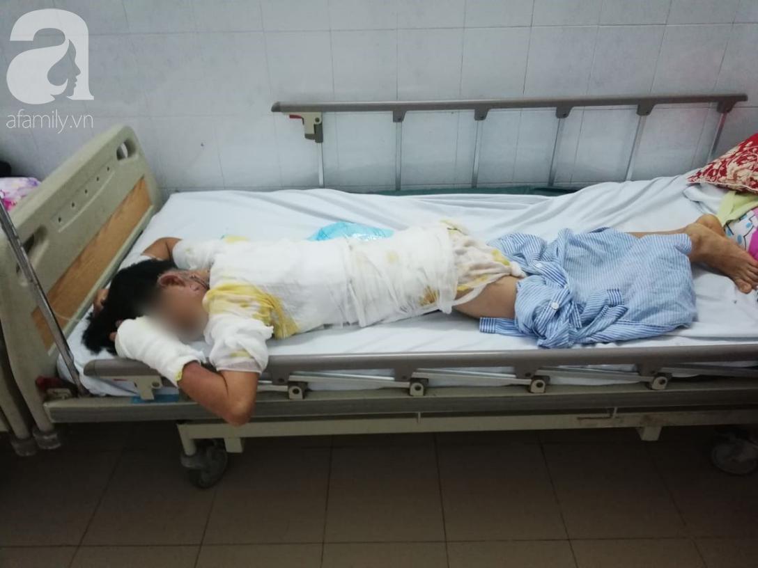 Vụ chồng tẩm xăng thiêu sống cả nhà vì vợ dỗ con không nín: Người mẹ hoảng loạn, bé trai 2 tuổi bị nhiễm trùng nặng-1