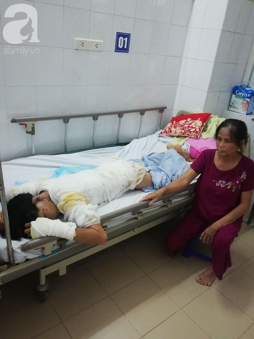 Vụ chồng tẩm xăng thiêu sống cả nhà vì vợ dỗ con không nín: Người mẹ hoảng loạn, bé trai 2 tuổi bị nhiễm trùng nặng-2