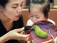 'Thổi phù cho nguội thức ăn' - hành động thường xuyên của người lớn dành cho con trẻ nhưng lại ẩn tàng nguy cơ bệnh tật!
