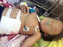 Ông nội tự lấy kim chỉ khâu vết thương của cháu gái bị máy cắt lòi ruột