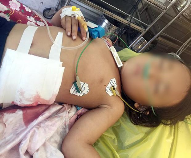 Ông nội tự lấy kim chỉ khâu vết thương của cháu gái bị máy cắt lòi ruột-1