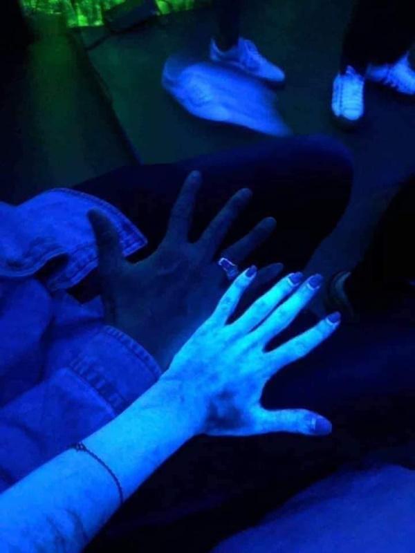 Kinh hãi hình ảnh cơ thể cô gái phát sáng như zombie khi thoa kem dưỡng sau tắm trắng-2