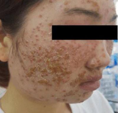 Chăm sóc da mặt theo những cách này, nhiều chị em khóc nghẹn vì da đóng vảy, sần sùi khó phục hồi-1