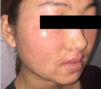 Chăm sóc da mặt theo những cách này, nhiều chị em khóc nghẹn vì da đóng vảy, sần sùi khó phục hồi-2