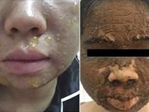 Chăm sóc da mặt theo những cách này, nhiều chị em khóc nghẹn vì da đóng vảy, sần sùi khó phục hồi
