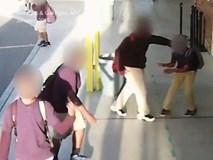 Cậu bé bị bắt nạt đến mức tổn thương não vĩnh viễn, bằng chứng có đủ nhưng thái độ của nhà trường lại gây phẫn nộ hơn cả